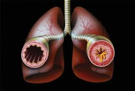 bronhialnastma