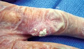 рак на кожата