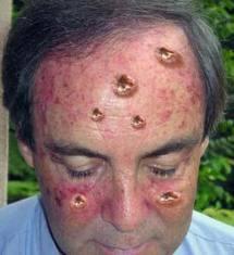 рак на лицето