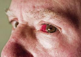 проблем с очите