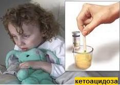 кетоацидоза
