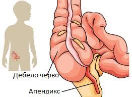 дебело черво и апендикс