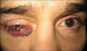 наранено око