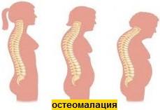 остеомалация