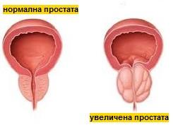 болести на простатата