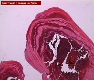 Видове тромбози. Артериална и венозна тромбоза
