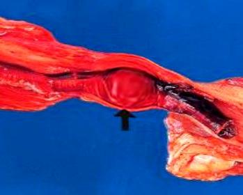 червен тромб