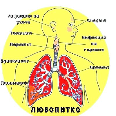 болести на белия дроб