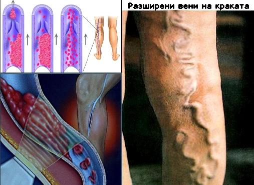 образуване на тромб