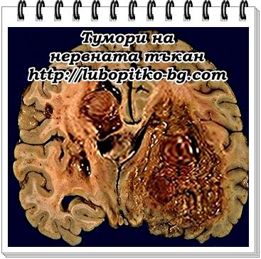 тумори на нервната тъкан