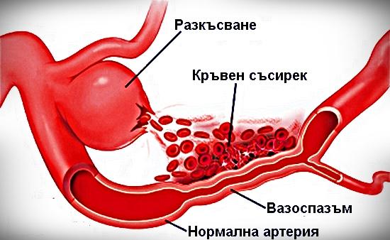 кръвоизлив