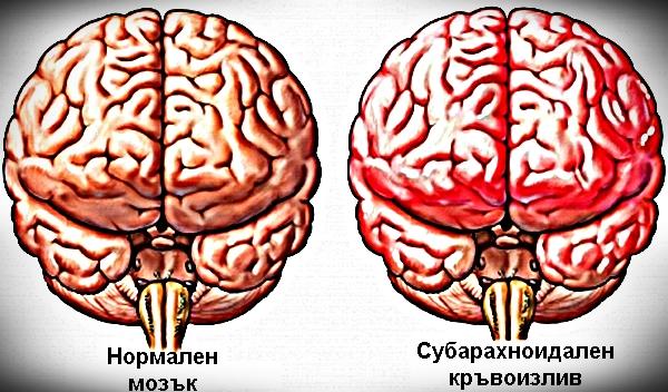 мозъчен кръвоизлив