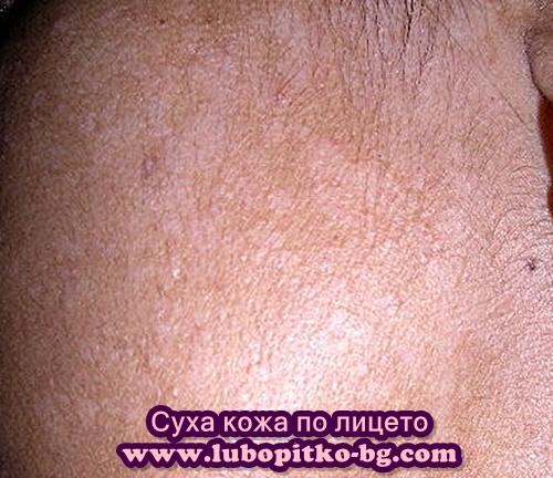 кожа на лицето